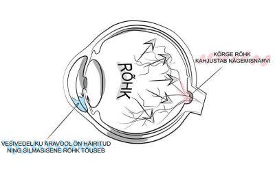 Silmarõhk ja selle mõõtmine