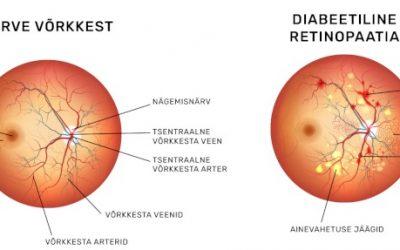 Suhkruhaigusest tingitud diabeetiline retinopaatia