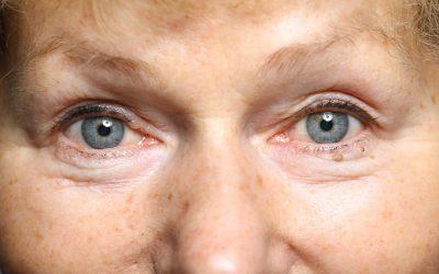 Hallkae – enamlevinud silmahaigus 45+ inimeste seas